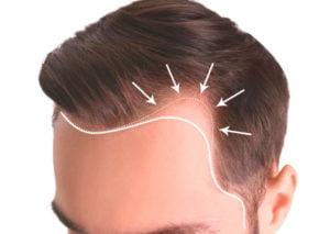 uzun saç ekimi