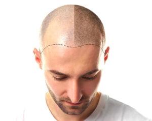 Was ist Haartransplantation