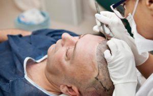 haartransplantation-unter-der-leiter-verletzt
