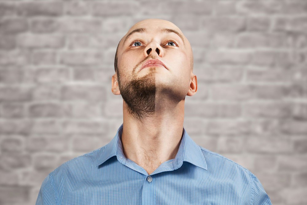 what-is-beard-transplantation-and-who-can-have-it